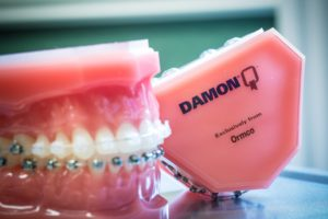 Damon-Clear-Invisalign-Nudera-Orthodontics-Braces-in-Chicagoland-16-300x200