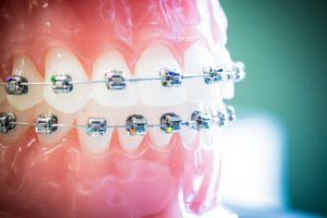 Damon-Clear-Invisalign-Nudera-Orthodontics-Braces-in-Chicagoland-7-300x200