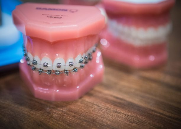 Nudera-Orthodontics-Braces-and-appliances-in-Chicagoland-3-612x436  - Braces and Invisalign in South Elgin and Elmwood Park, IL - Nudera Orthodontics