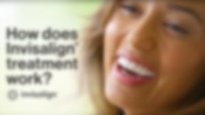 how-does-invisalign-work-thumb-blur-300x169