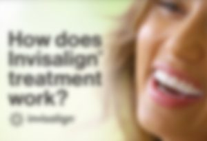 how-does-invisalign-work-thumb-blur2-300x205